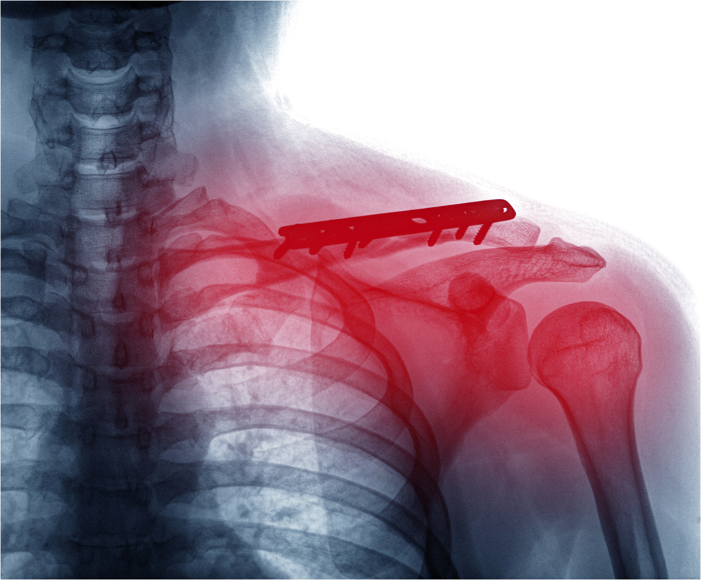 Unfälle durch Ausrutschen und Hinfallen und andere Körperverletzungen